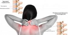 Восемь упражнений против шейного остеохондроза. Сбереги свое здоровье